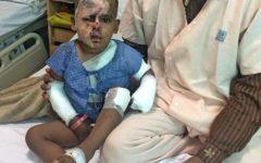 Garoto é atacado com ácido por homem que estava a fim da mãe dele
